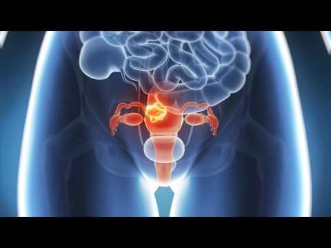 Рак матки первые симптомы