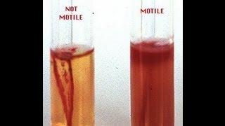 Motility Determination in Bacteria - Amrita University