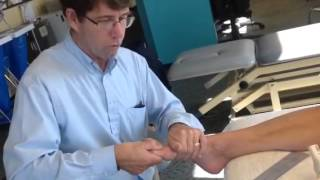 Hallux Limitus Evaluation with Self Mobilization