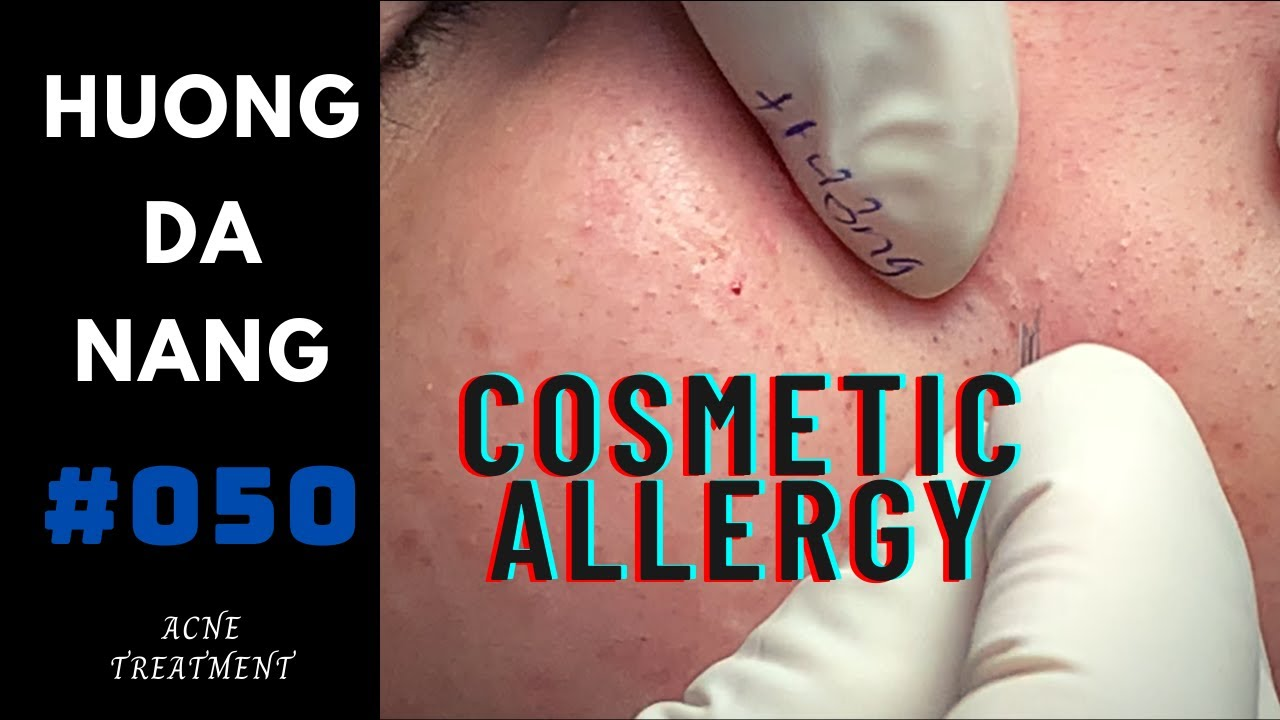 #050   Hidden acne due to cosmetic allergy   before the demand for Social distancing in Da Nang