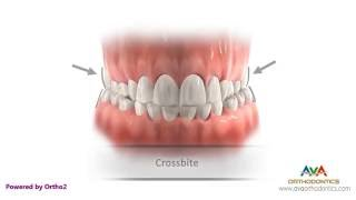 Квад хеликс - стоматология одесса(Клиника регенеративной Стоматологии Geneva., 2016-07-18T10:10:00.000Z)