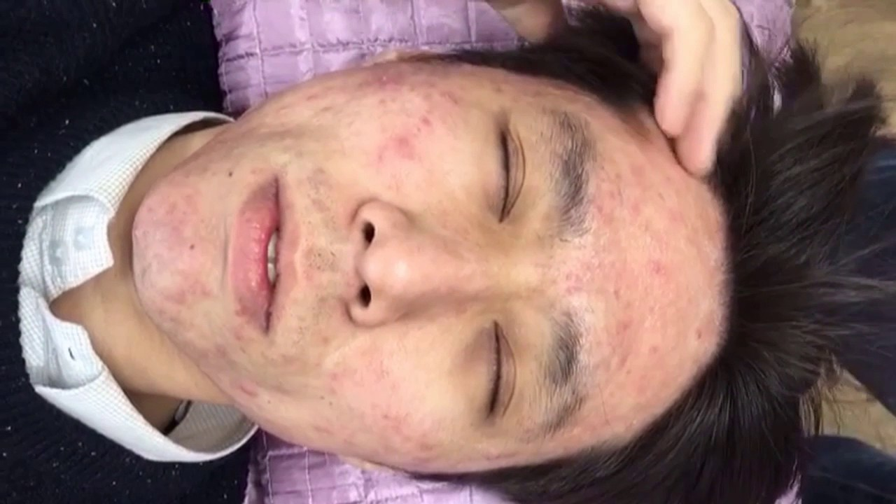 b5a096adcad1 Acne, Cell ON Treatment(the 5th day of acne conglobata treatment)