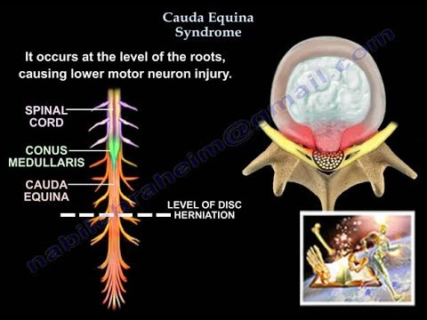 Cauda Equina Syndrome - Everything You Need To Know - Dr. Nabil