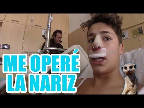 ME OPERÉ LA NARIZ / Juanpa Zurita