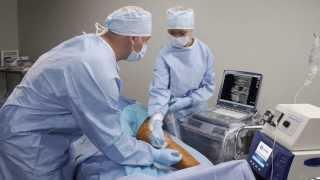 De venas radiofrecuencia dolor por después varicosas la ablación