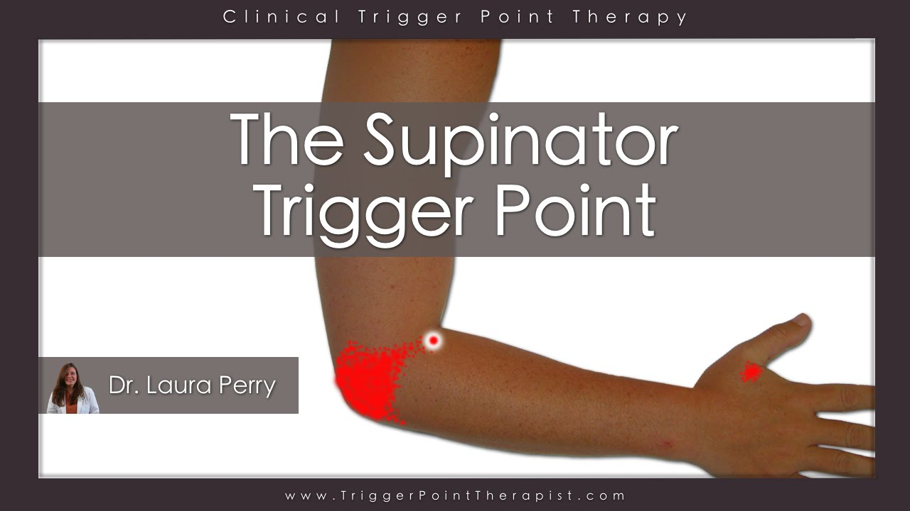 The Supinator Trigger Point Youtube