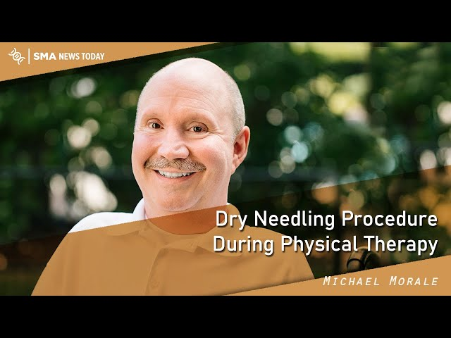 Dry Needling Procedure During Physical Therapy