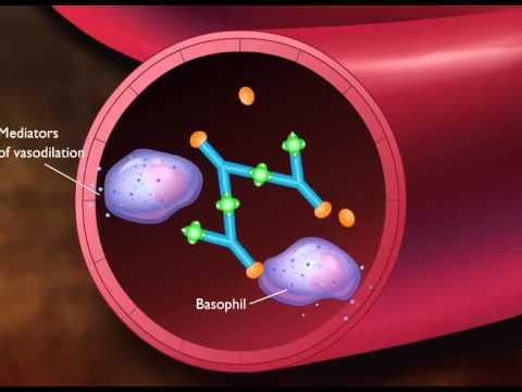 Antigen and antibody immune complex