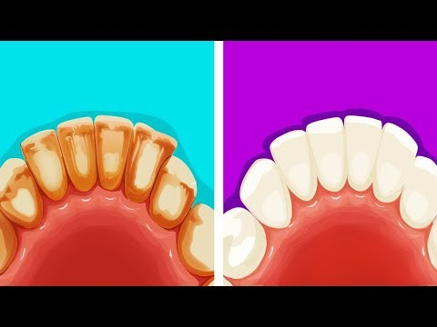 Как убрать белый налет на зубах