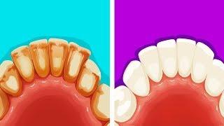 8 Эффективных и Натуральных Способов Избавиться от Зубного Налета