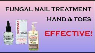 Nail Fungus - How To Treat Nail Fungus At Home- Probelle Nail Fungus Treatment- Nails By Ersi