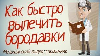 Бородавки лечение. Как лечить бородавки в домашних условиях.(, 2014-07-01T15:29:54.000Z)