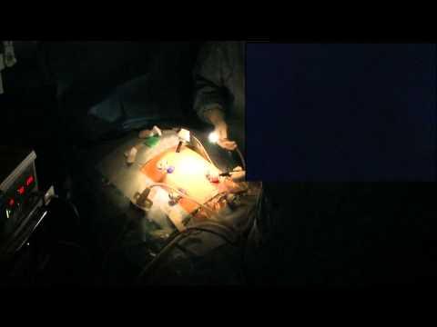 Endometriosis of right diaphragm : ablation using plasma energy