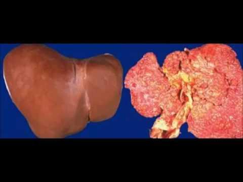 cirrhose foie douleur à la poitrine à la respiration pleurésie