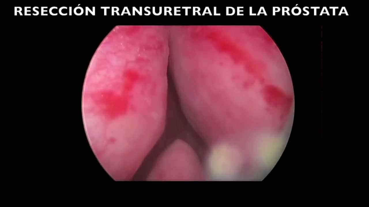 adenoma de próstata rtu
