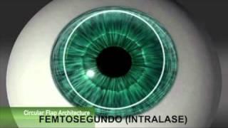 Microqueratomo vs Femtosegundo (Intralase) en cirugía LASIK