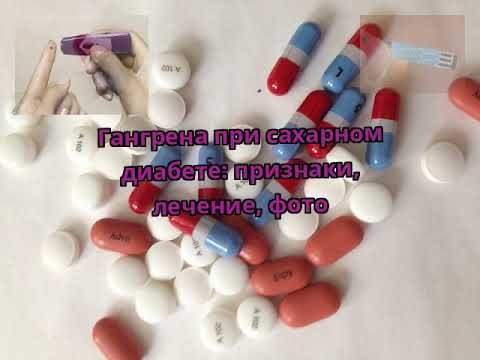 Гангрена при сахарном диабете: признаки, лечение, фото
