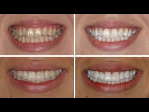 Crest 3d whitestrips glamorous white advanced