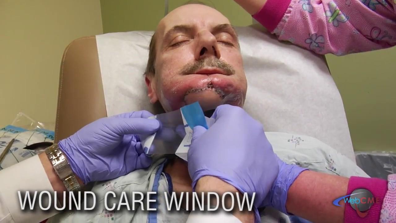 Download Wound Care Window- Oral Cutaneous Fistula