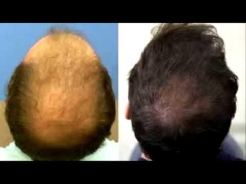 hair-loss-protocol-101---21-causes-of-the-hair-loss