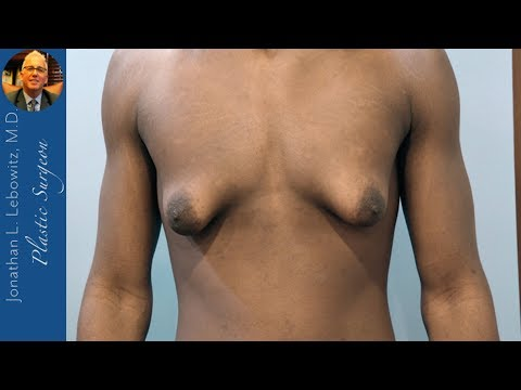 Glandosaurus Rex🐲 Gynecomastia Surgery On Teen, The Long Island Gynecomastia Center By Dr. Lebowitz