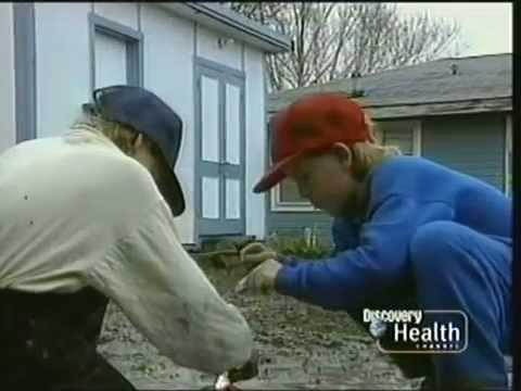 Rescue 911: Boy vs  Gasoline Volcano