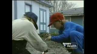 Rescue 911: Boy vs. Gasoline Volcano