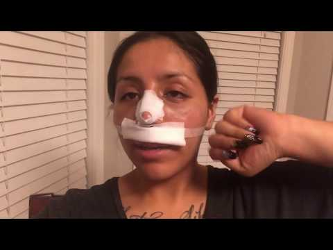 MY NOSE JOB VLOG -DAY2!! **Cleaning My Nose After Surgery**