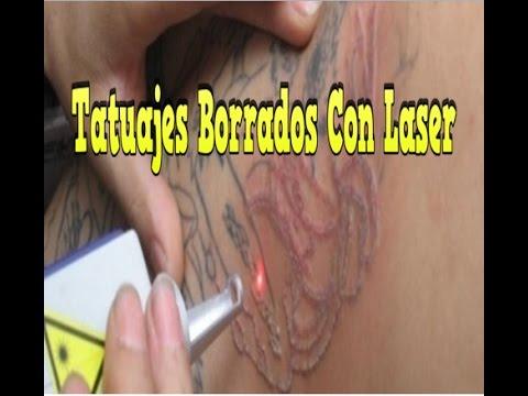 Tatuajes Borrados Con Laser Cómo Borrar Un Tatuaje Como Quitar Un