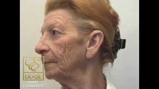 Muriel on Using Erase Instant Facelift Cream Thumbnail