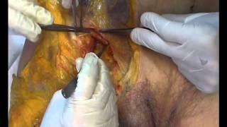 Bases anatomiques de la région inguinale