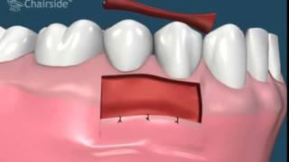Свободный десневой лоскут (Обучающее видео для стоматологов)