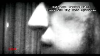 the Big Nose Attack [trailer pt.2]