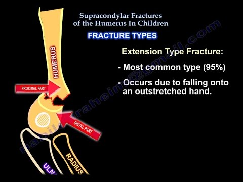 Supracondylar Fractures Of The Humerus In Children