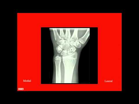 Carpal Tunnel Syndrome - CRASH! Medical Review Series