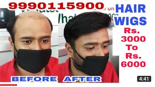 Hair wigs in delhi . Rs. 6000 . 9717370851 . Hair wigs shop in delhi  Hair wigs price in delhi