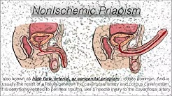 Priapism - a hard and painful thing to talk about!