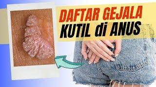 Kutil kelamin atau genital warts merupakan penyakit Infeksi Menular Seksual (IMS) yang disebabkan ol.