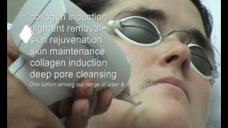 Q switched NdYag laser skin rejuvenation treatment UK Thumbnail