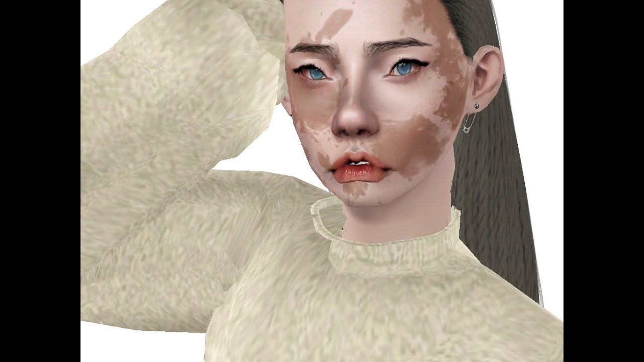 The Sims 3 Create A Sim Vitiligo Youtube