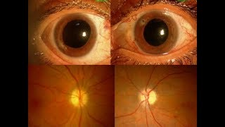 Pterigium con afectación visual..