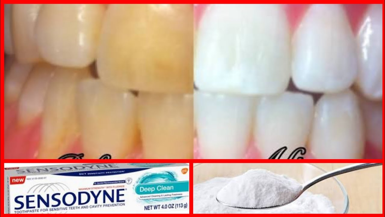 How To Whiten Teeth At Home In 2 Min With Baking Soda And Hydrogen