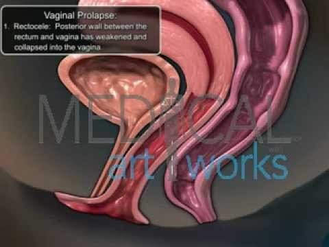 inside vagina view tissue