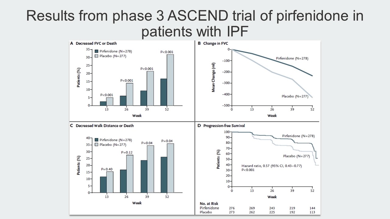 Trial Data (Track T Stop 4) IPF: Navigating a Complex Disease