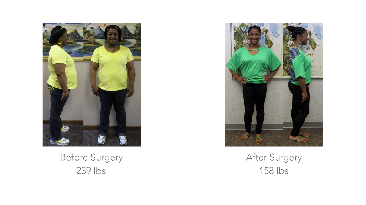 Me Chelle S Story Promedica Weight Loss Youtube