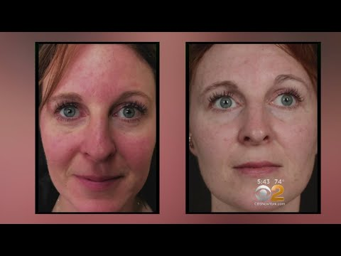 Health Watch: New Laser Treatment For Rosacea