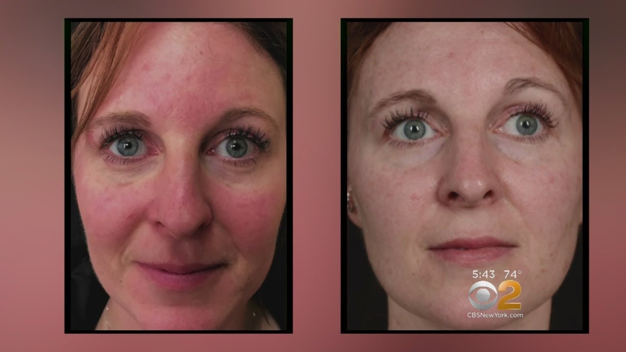 Health Watch New Laser Treatment For Rosacea Youtube