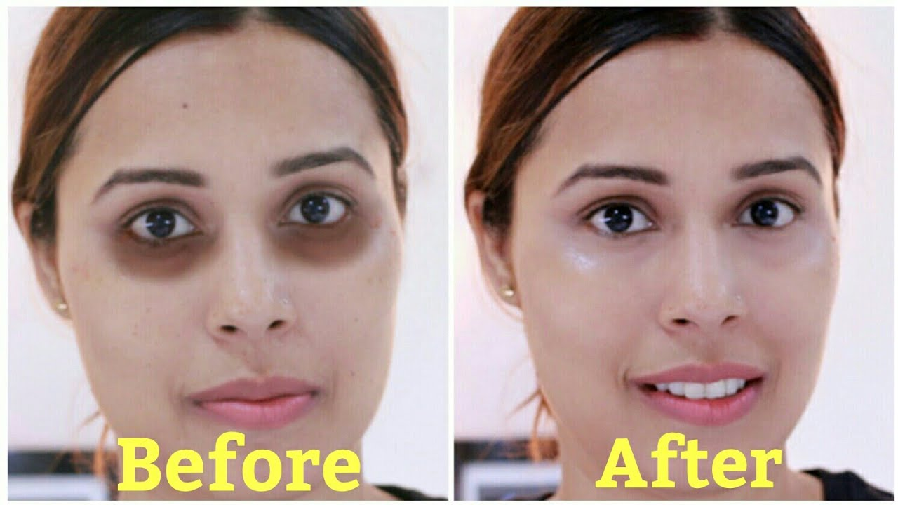 Image Led Get Rid Of Bags Under Your Eyes 4