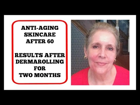 Demo - Derma Rolling Face at 2 Months -Anti-Aging Skincare - Results