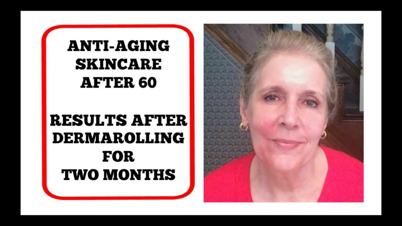 derma roller reviews for wrinkles